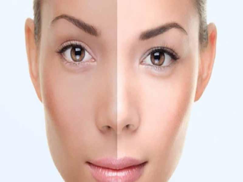 روش های سریع برای روشن و سفید کردن پوست صورت